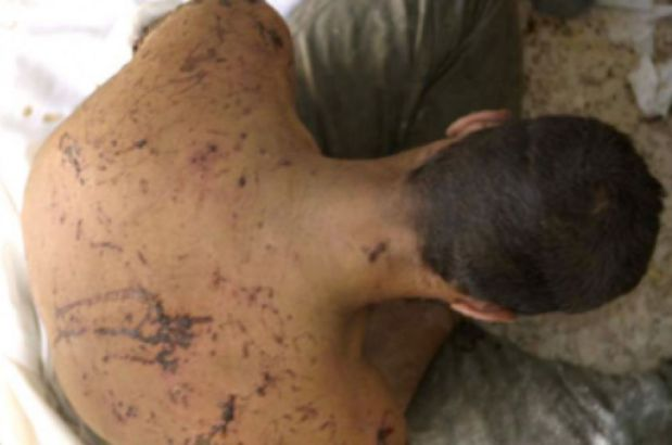 siria-torture